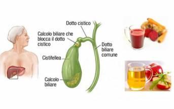 L'alimentazione nei problemi della vescica biliare