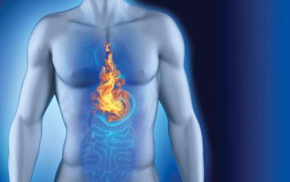 Gastrite e Reflusso biliare