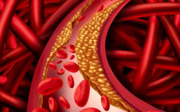 Colesterolo: esistono dei rimedi naturali?