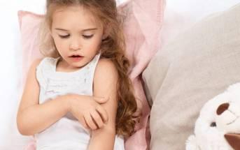 Il problema della dermatite atopica nei bambini